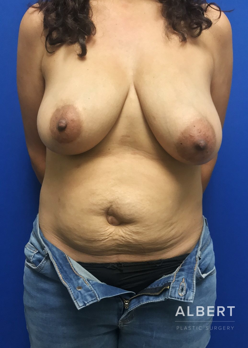 Breast Reduction/ Breast Lift